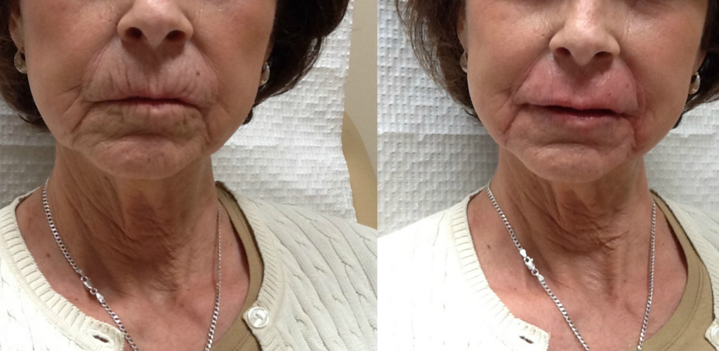 Before and Immediately after 3 syringes of JUVÉDERM Volbella XC