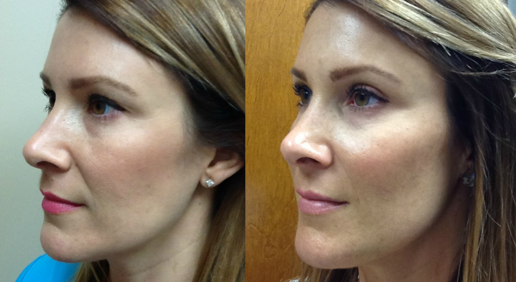 Before and After 2 syringes of JUVÉDERM VOLUMA® XC and 1 syringe of JUVÉDERM® Ultra XC