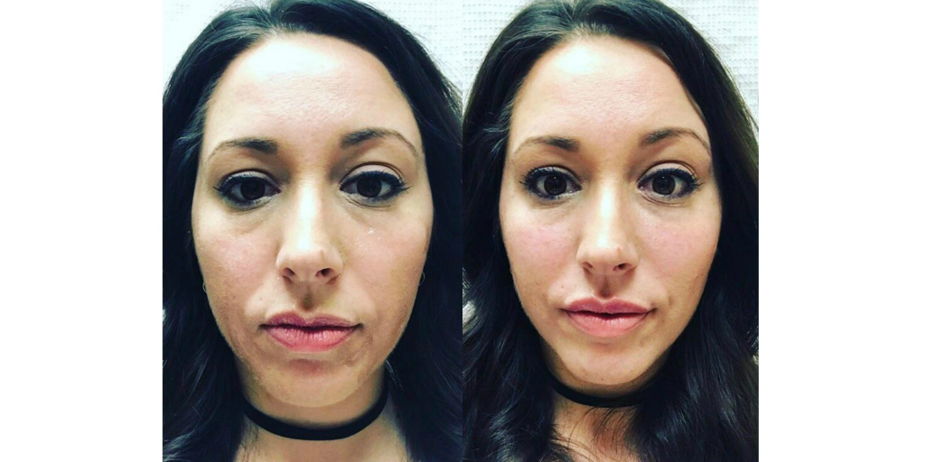 Before and Immediately after  JUVÉDERM VOLUMA® XC and  JUVÉDERM ULTRA PLUS® XC