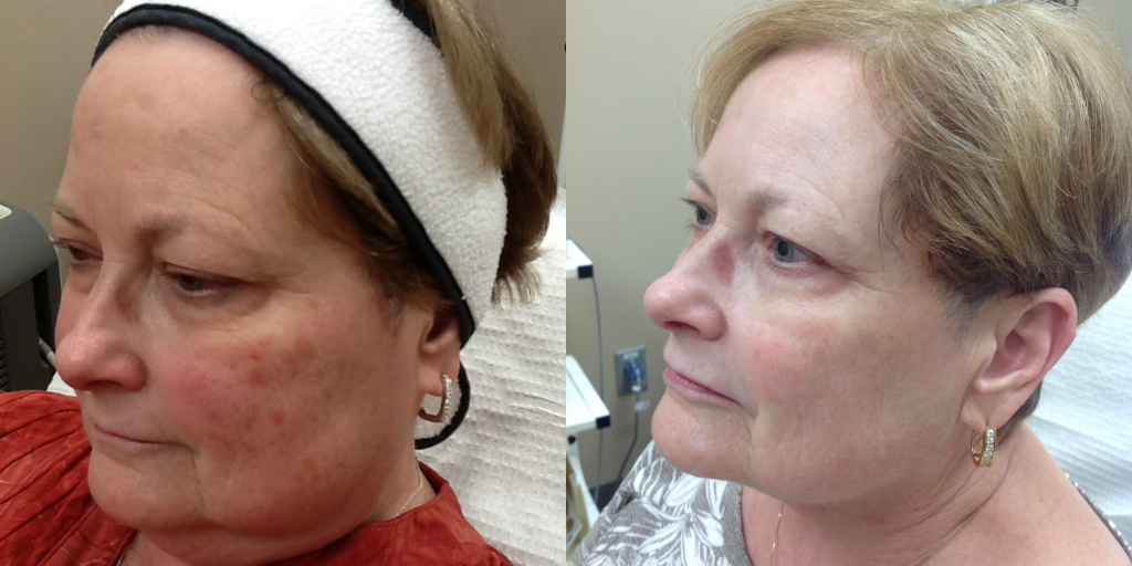 IPL x 5 treatments with consistent use of Sunscreen