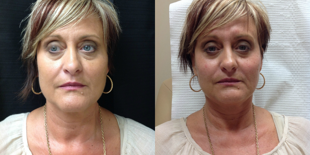 Before and After 2 syringes of Juvederm Voluma XC