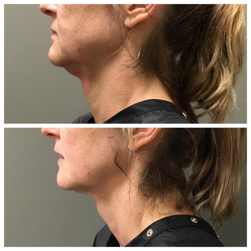 After 1 treatment of Kybella