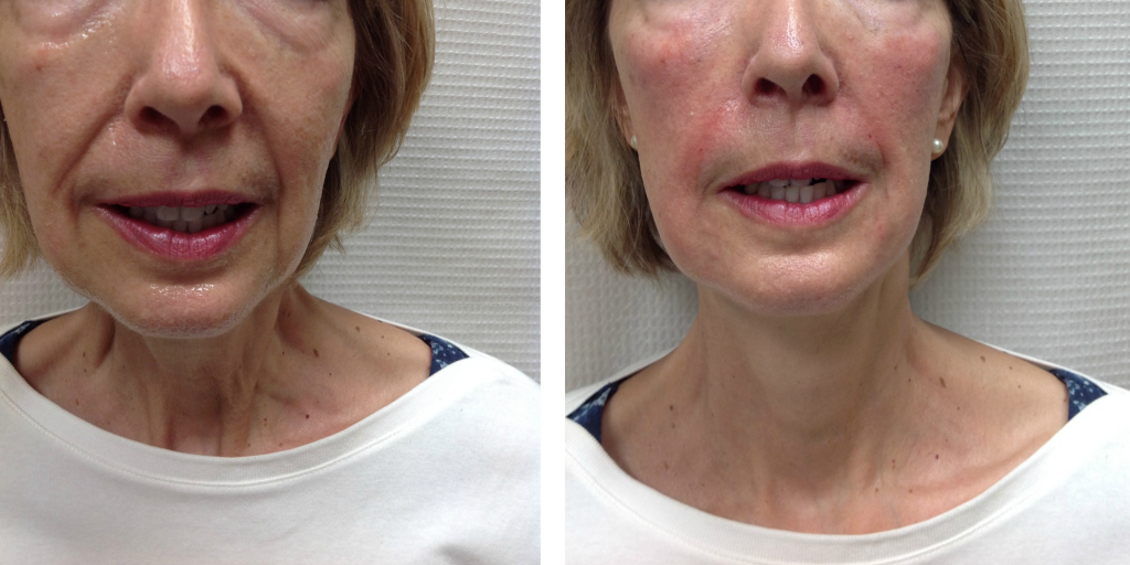 Before and After 1 Juvederm Ultra Plus XC and 2 Juvederm Voluma XC