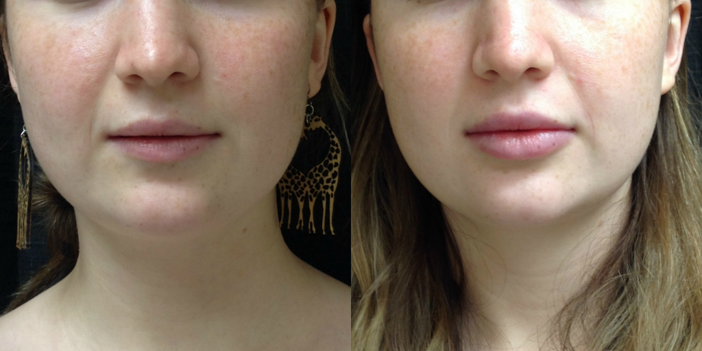Before and After 1 syringe of Juvederm Ultra Plus