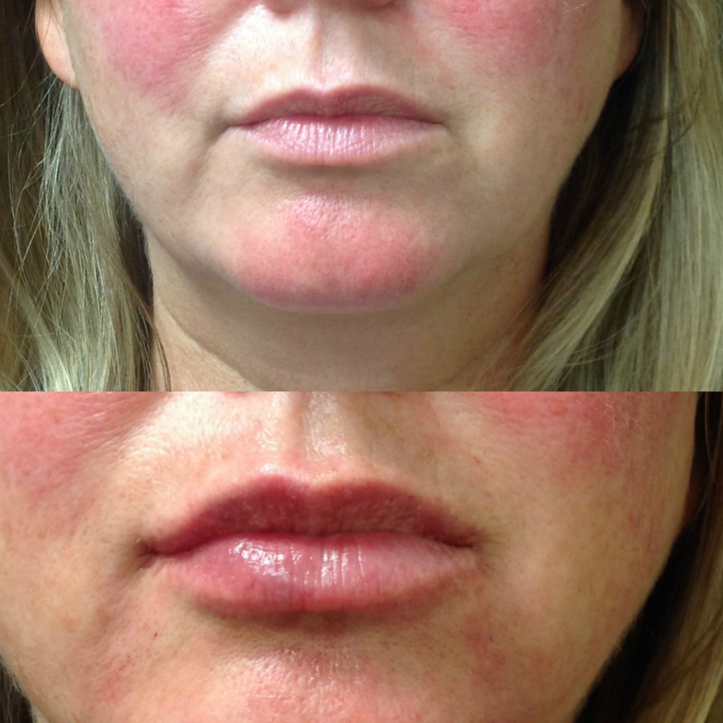 Before and After 1 syringe of Juvederm Volbella and 1 syringe of Juvederm Ultra Plus XC
