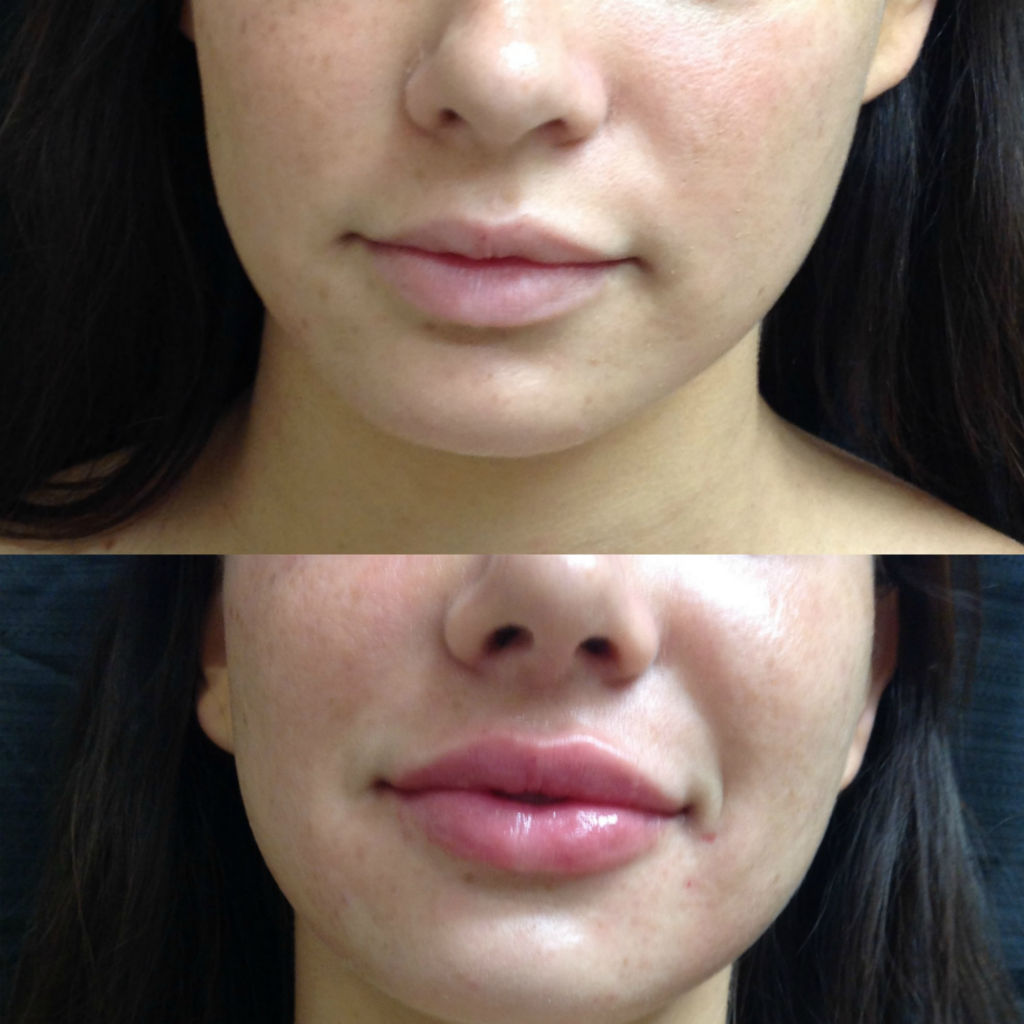 Before and After 1 syringe of Juvederm Volbella XC