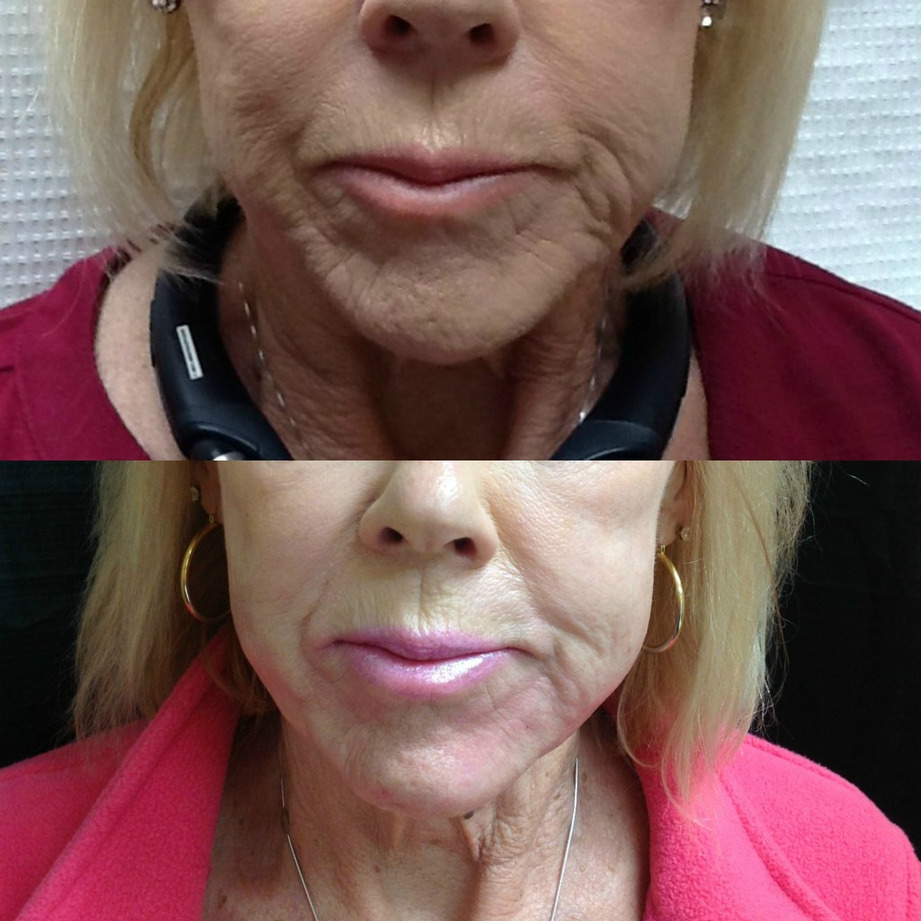 Before and After lower face correction using Juvederm Ultra Plus XC