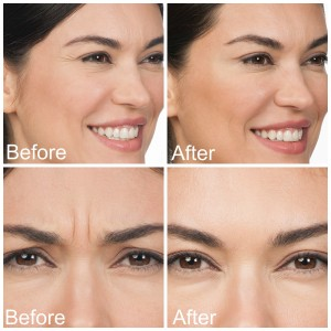 botox before and afters with text